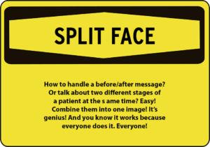 split-face